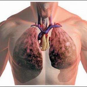 рак-легких