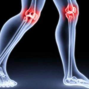 1375354271_artrit-kolennogo-sustava