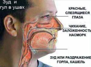 simptomy_allergii-300x221